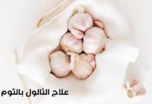 WhatsApp Image 2020 06 08 at 3.39.07 AM 220x150 - طريقة علاج الثالول او الزوائد الجلدية بالثوم
