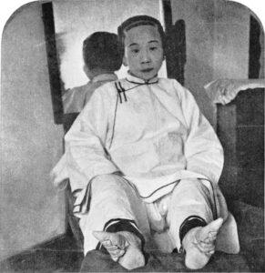 القدم الصينية