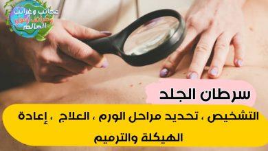 """العلاج الحيوي , العلاج الضوئي الديناميكي , العلاج الكيميائي , العلاج الإشعاعي , الكشط والتَّجفيف الكهربي , ترقيع الجلد , التسديل الحر ذو الاوعية الدقيقة , تسديل الجلد المُعَنَّق , تسديل الجلد المحلي , ترقيع الجلد , إعادة الهيكلة والترميم , جراحة موس , جراحة استِئصاليَّة , التَّجميد عن طريق النيتروجين السائل , تحديد مدى انتشار سرطان الجلد , سرطان الجلد """" التشخيص , تحديد مراحل الورم , العلاج ,إعادة الهيكلة والترميم """" , أحسن دكتور جراحة أورام في المنصورة، أدوية سرطان الغدة الدرقية، أسباب سرطان الثدي، أستئصال نصف الغدة الدرقية، أستشارى جراحة أورام، أعراض أورام الغدة الدرقية الحميدة، أعراض السرطان، أعراض السرطان الجلد ميلانوما الجلد، أعراض الغدة الدرقية، أعراض تليف الغدة الدرقية، أعراض سرطان، أعراض سرطان الثدي، أعراض سرطان الثدي عند النساء، أعراض سرطان الجلد، أعراض سرطان الجلد الحرشفي، أعراض سرطان الجلد الميلانوما، أعراض سرطان الجلد الميلانوما في الأظافر، أعراض سرطان الجلد على الأظافر، أعراض سرطان الجلد عند الأطفال، أعراض سرطان الجلد في الأظافر، أعراض سرطان الظفر، أعراض سرطان الغدة الدرقية، أعراض سرطان الغدة الدرقية الحميد، أعراض سرطان الغدة الدرقية عند الرجال، أعراض مرض السرطان، أعراض نشاط الغدة الدرقية، أعراض ورم الغدة الجار درقية، أعراضه و أسبابه و أنواعه، أفضل دكتور جراحة الغدة الدرقية، أمراض الغدة الدرقية، أورام الجلد بالصور، أورام الغدة الدرقية، أورام الغدة الدرقية الحميدة وعلاجها، أورام الغده الدرقيه، أول ظهور لوفاء الكيلاني، اثار سرطان الجلد، ارتجاع سرطان الغدة الدرقية، ارتفاع الخلايا القاعدية، اسباب الغدة الدرقية، اسباب سرطان الجلد، اسباب سرطان الغدة الدرقية، اسباب ورم الغده الدرقيه، استشاري جراحة الغدة الدرقية، اسم تحليل سرطان الغدة الدرقية، اشكال البقع السرطانيه، اشكال الحبوب السرطانية، اشكال السرطان الجلدي، اشكال سرطان الجلد، اشكال سرطان الجلد بالصور، اضطرابات الغدة الدرقية، اعراض اضطرابات الغدة الدرقية، اعراض الاصابة بسرطان الجلد، اعراض السرطان، اعراض السرطان المبكرة، اعراض السرطان على الجلد، اعراض الغدة الدرقية، اعراض اللوكيميا على الجلد، اعراض الميلانوما، اعراض الورم الميلانيني، اعراض انواع سرطان الغدة الدرقية، اعراض اورام الغدة الدرقية، اعراض سرطان البشرة"""