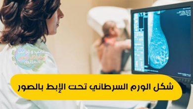 شكل الورم تحت الإبط , ما هي الأورام العرضية؟ , حجم الورم موقع الورم , موقع الورم العرضي , ما حجم الورم , خبيث أم حميد ؟ , أنواع الأورام المختلفة , أنواع الأورام المختلفة شكل الورم السرطاني تحت الإبط بالصور , ماذا يمكن أن تعني الأورام لصحتك؟ , ما هو الورم؟ , شكل الورم السرطاني تحت الإبط بالصور , أورام الرحم,الأورام الليفية,أورام ليفية في الرحم,علاج أورام الرحم,أعراض أورام الرحم,الأورام,انكماش الأورام,أورام الصدر,الوقاية من الأورام,دلالات الاورام,علاج الأورام,جراحة الأورام,دلالات الأورام,علاج الاورام الليفية بدون جراحة,اورام الرحم الحميدة واعراضها,أورام الثدى,أورام الكبد,أورام القفص الصدري,أورام الرحم والحمل,الأورام الحميدة والخبيثة,هل تعالج الأورام الحميدة بالأشعة؟,اعراض الورم الليفي,أورام الجدار الصدري,أورام المعدة , انواع اورام الغشاء البريتونى,أنواع الأورام,أنواع الأورام الخبيثة,أنواع الأورام الحبيبية,أنواع الأورام للسيدات,الأورام الليفية,انواع الاورام الحميدة,انواع الاورام,انواع الاورام السرطانية,، ـنواع أورام القلب،,ما هي انواع دلالات الاورام,اورام القولون و المستقيم,اورام الغشاء البريتونى,انواع الورم,أورام الثدى,اورام المعده,اورام المبيض,الاورام الحميدة,قسم الاورام,اورام الرحم,اورام الكبد,أورام المخ,الاورام,اورام الزائده,الأورام الخبيثة , حميد,الفرق بين الورم الخبيث والحميد,ورم حميد,الورم الحميد,الفرق بين الورم الحميد والورم الخبيث,اورام حميدة,ورم خبيث,اكبر خبيث,الفرق بين الورم الحميد والخبيث,اورام خبيثة,الفرق بين السرطان الحميد والخبيث,الفرق بين السرطان الخبيث والحميد,علاج الورم الحميد,اعراض الورم الحميد,علاج سرطان المعدة الخبيث,اعراض سرطان المعدة الحميد,رانيا محمود ياسين,خباثه,عبدالحميد,خباثه طبانه,خباثه اطفال,محمد,محمد الجنامي,الغده الخبيثه,ميديا,الأورام الخبيثة, الفرق بين الورم الحميد والورم الخبيث,الورم الليفي,الفرق بين الورم الخبيث والحميد,الورم الحميد,الورم الليفي في الرحم,تقليل حجم الورم,تقليص حجم الورم,اعراض الورم الحميد,الورم,تصغير حجم الورم الليفي,تقليص حجم الورم الليفي,الفرق بين الورم الحميد والخبيث,كيفية تقليل حجم الورم الليفي,علاج الورم الحميد,الاورام,اورام القولون,ما هي اورام الكبد,علاج الورم الليفي في الرحم,الورم الليفي في الرحم اثناء الحمل,مشاك